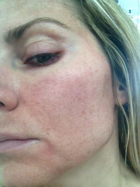 dry tight skin on face