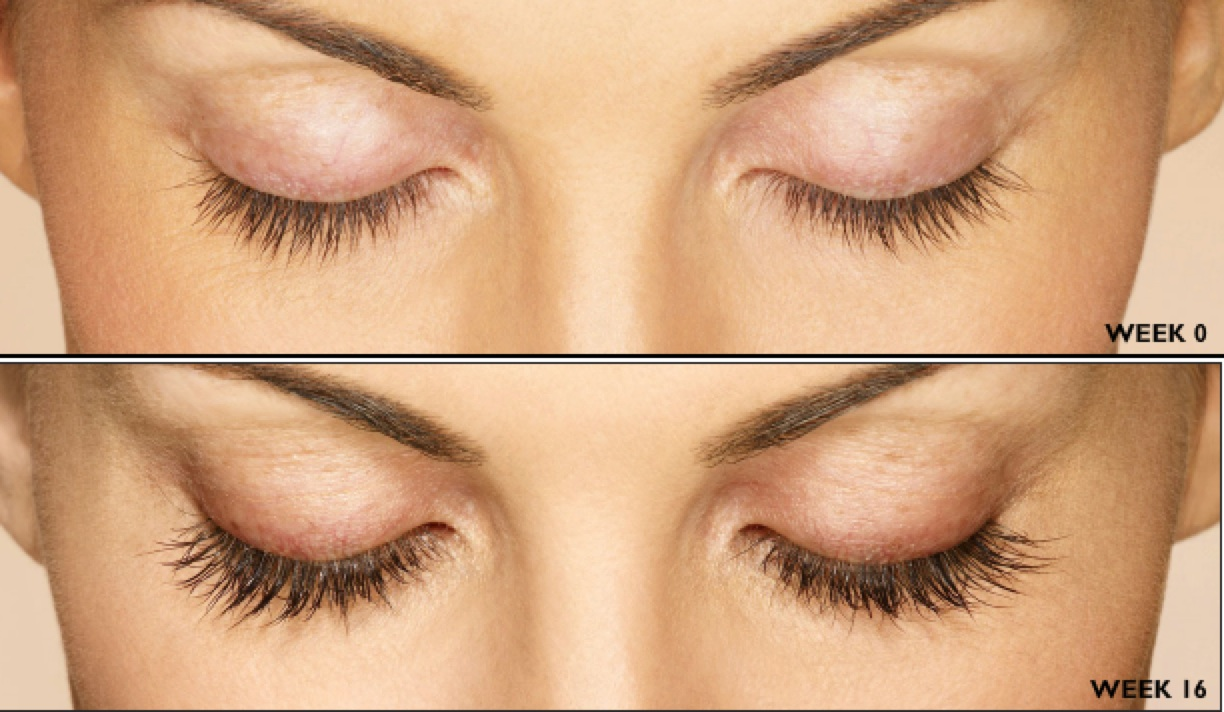 Thicker, Longer Eyelashes Are Yours for the Growing - Karousing.com